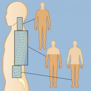 spinal cord injury lawyer maine